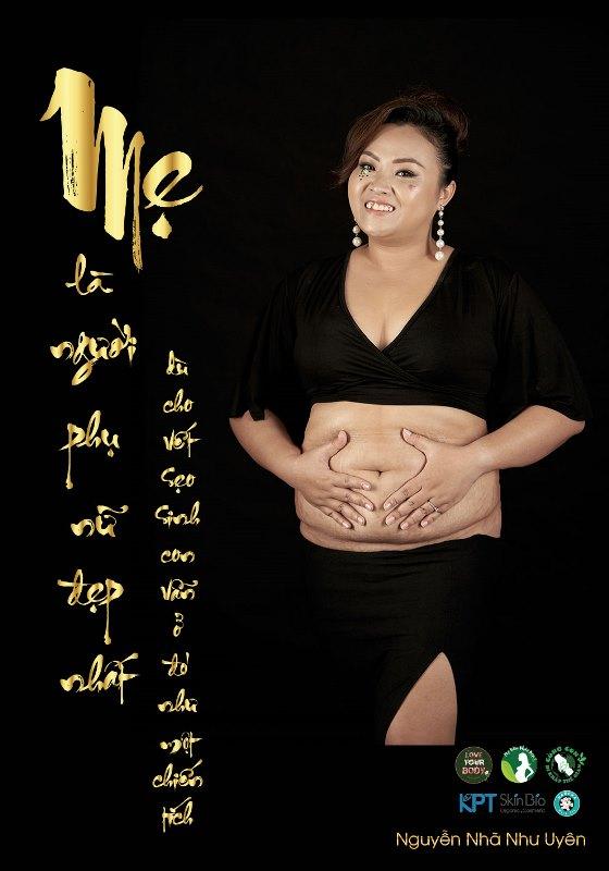 nguyễn nhã như uyên Dự án Love Your Body tung bộ ảnh mẹ sinh mổ gây xúc động
