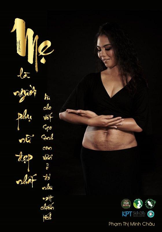 phạm thị minh châu Dự án Love Your Body tung bộ ảnh mẹ sinh mổ gây xúc động